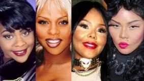 15-celebs-plastic-surgery-disasters__aside