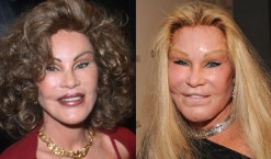 54eab143af0f8_-_03-botch-plastic-surgeries-jocelyn-wildenstein-lifestyle-1