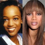 Best-Celebrity-Plastic-Surgeries-16-Tyra-Banks