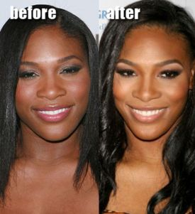 celebs_with_plastic_surgery_640_14