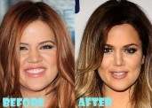 Khloe-Kardashian-before-and-after-plastic-surgery-08