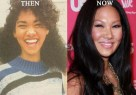 Kimora-Lee-Simmons-Plastic-Surgery (1)