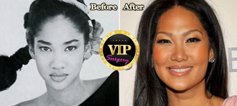 kimora-lee-simmons-plastic-surgery