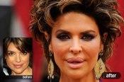 p-celebrity-plastic-surgery-p06