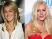plastic-surgery-apocalypse-celebrities-who-looked-better-before-they-went-under-the-knife