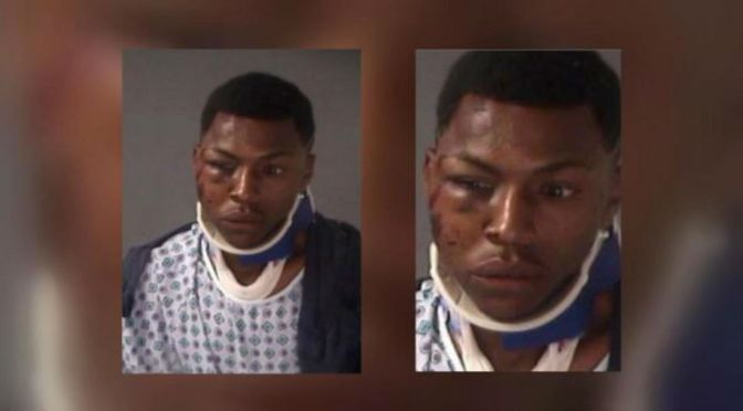 Atlanta Officer Claims Victim Suffered Fractured Face From 'Falling'