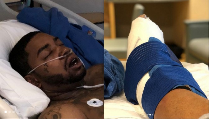 Lil Scrappy Hospitalized After Car Wreck