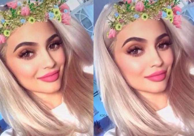 """Plastic Surgeons Report An Increase In Patients Suffering From """"Snapchat Dysmorphia"""""""