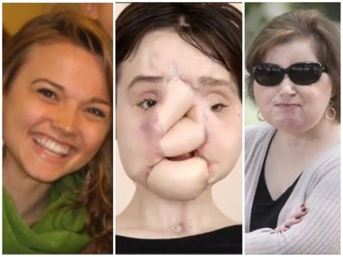 Young Woman Details Her Face Transplant Story