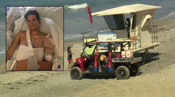 California Teen Survives Shark Attack