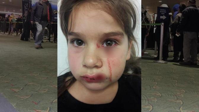 """Lawsuit: Girl Mauled By """"Emotional Support"""" Pit Bull"""